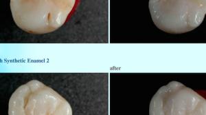 Паста Charcle: пломбирует зубы, компостирует мозги